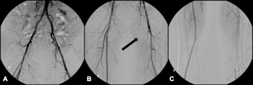 Lower extremity angiography (2004). a Both common iliac arteries showed patent flow without stenosis or occlusion. b The left superficial femoral artery was occluded at its origin (arrow). c The left distal superficial femoral artery was reconstituted by an abnormal corkscrew collateral blood flow from the left deep femoral artery