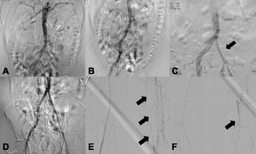 Abdominal and lower extremity angiography (2014). a Renal angiography could not identify either renal artery due to total occlusion. b Lower extremity angiography showed a chronic total obstruction lesion of the left common iliac artery due to progression of chronic thrombosis. c A stent was deployed at the site of occlusion of the left common iliac artery (arrow). d Flow was recovered. e Obstruction of the left superficial femoral artery and abnormal corkscrew collateral blood supply from the left deep femoral artery was similar to that seen in 2004 (arrows). f The left tibioperoneal trunk was occluded (arrow), and blood flow below the knee was supplied by collateral vessels