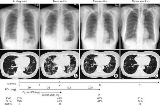 Summary of treatment agents, clinical course, and radiologic findings. High resolution chest computerized tomogram of a case that worsened after 2 months treatment of prednisolone and 1-month treatment of cyclophosphamide (A), and improved with 3 months treatment with clarithromycin (B). High resolution computerized tomogram, lung function tests, and dyspnea improved 6 months after ceasing administration of clarithromycin (C). PDL: prednisolone; Cyclo: cyclophosphamide; Clarith: clarithromycin; FVC: forced vital capacity; DLco: diffusion capacity of lung; mMRC: modified British Medical Research Council.