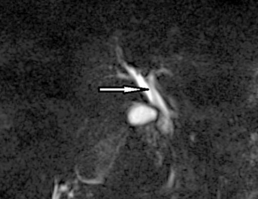 Magnetic resonance cholangiography image showing non-shadowing tubular defect in the common bile duct.