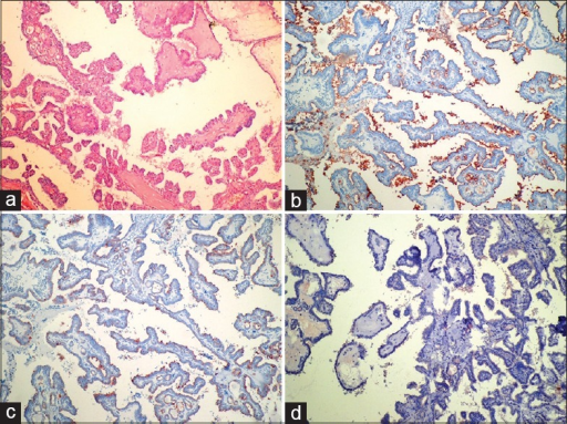 (a) A case of classic papillary thyroid carcinoma. There are branching papillary structures, fibrovascular cores, polygonal-shaped neoplastic cells with eosinophilic cytoplasm, and overlapping. In the same case, positive membranous staining in luminal side with HBME-1 (b), positive staining with cytokeratin 19 (c), and no staining with CD56 (d) (a: H and E×100; b: HBME-1 ×100; c: CK19×100; d: CD56×100)