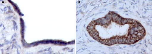 WWOX immunohistochemical staining of normal ovary. A) Representative photomicrograph (20X) of normal ovary displaying positive staining in ovarian surface epithelial cells. B) Photomicrograph (20X) showing strong WWOX inmunostaining localizing to the cytoplasm of inclusion cyst epithelial cells.