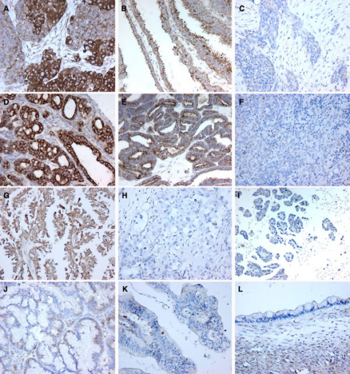 WWOX inmunohistochemical staining in ovarian carcinoma samples by histotypes. A-C. Serous ovarian carcinomas. A, Strong-Moderate. Note heterogeneity in staining intensity pattern in this tumor sample; B, Moderate. Note predominance of apical staining in this papillary serous ovarian carcinoma; C Weak-Negative, WWOX lack of staining observed in approximately 30% of serous carcinoma cases. D-F. Endometroid ovarian carcinomas. D and E positive WWOX cytoplasmic staining and F negative staining. G-I. Clear Cell ovarian Carcinomas. G, representative photomicrograph of one of a moderately WWOX positive CCC case, while H and I, represent typical negative cases. J-L. Mucinous ovarian carcinomas, J, representative mildly positive case and K representative mucinous carcinoma of the endocervicoid subtype with demonstrating no WWOX staining. L, mucinous carcinoma of the intestinal subtype also negative for WWOX staining.