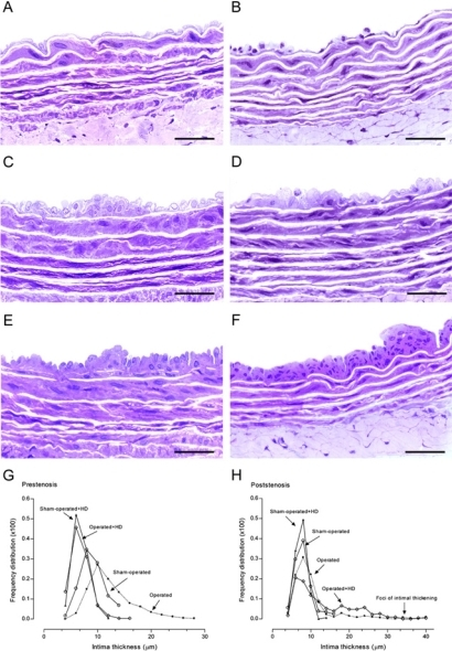 High resolution light microscopy. Representative views of the aortas from sham-operated (A), prestenosis (C), poststenosis (E), sham-operated+HD (B), prestenosis+HD (D) and poststenosis+HD (F). Panel C. Intimal thickening with enlarged endothelial cells and diffusely distributed neointimal plaques composed of smooth muscle cells and occasional mononuclear cells with collagen and elastic fibers surrounding them and medial thickening can be seen, contrasting with the delicate structure of the intima in the sham-operated group (A). Panel E. Intima appeared delicate quite similar to the intima in the sham-operated, except for focally distributed neointimal plaques similar to those observed in the prestenotic segment but many of them larger in size. Aortas from sham-operated+HD (Panel B) and operated+HD (Panel D) revealed diffusely distributed foci of small flat lesions corresponding microscopically to fatty streaks characterized by intimal foam cells accumulation, contrasting with the delicate structure of the intima in the sham-operated group. Panel F. Focally distributed incipient atherosclerotic lesions characterized by raised focal lesions within the intima composed of smooth muscle cells, mononuclear cells and extracellular matrix were seen in this segment. When the percentile frequency distribution of intima thickness in the prestenotic segment of all groups was plotted, it can be clearly seen the shift to the right of the values of operated group and in comparison with the values in corresponding segment in sham-operated animals (G). The percentile frequency distribution of intimal thickness in the poststenotic segment of sham-operated+HD, operated group and operated+HD was quite similar to that observed in corresponding areas of sham-operated group, except for the clear demonstrations of the occurrence of marked intimal thickening in the operated group and operated+HD (H). Scale bars, 40 µ m.