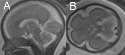 T2W sagittal MRI image (B) at 27 weeks shows the parieto-occipital sulcus (arrowhead), calcarine sulcus (open arrow), and primary cerebellar fissure (closed arrow). A T2W axial MRI image (B) shows myelination (hypointense region) in the posterior brainstem (arrowhead)