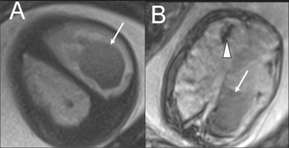 Single live gestation at 33 weeks. T2W (A) and gradient-echo T2W (T2*) MRI images show intraventricular (arrows) and periventricular (arrowhead) hemorrhage. Fetal blood sampling was negative for TORCH IgMs. A platelet count of 50,000 / mm3 was noted. Pregnancy ended with a stillbirth at 35 weeks.