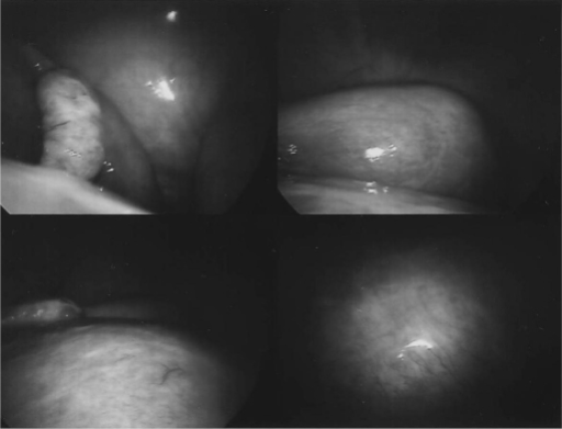 Laparoscopic images showing a large fibroid displacing the pelvic colon and rectum.