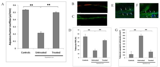 Ophthalmic administration of CXCR3 antagonist restores trabecular filtrating function and protects trabecular cells from apoptosis in a rat model of ocular hypertension.(A) Aqueous humor outflow impairment in hypertensive eyes is counteracted by treatment with CXCR3 antagonist as measured in vivo by fluorophotometry (n = 10 each). (B,C,D) Trabecular filtrating function is restored by treatment with CXCR3 antagonist as assessed by trabecular trapping of fluorescent microspheres (red), and quantitatively measured as percent of effective filtration length (PEFL), which is more important in treated eyes (B) than in untreated hypertensive eyes (C) (n = 10 each). (E,F,G) Density of apoptotic trabecular cells is lower in eyes treated with the CXCR3 antagonist (E) than in untreated hypertensive eyes (F), as assessed by TUNEL (green) and DAPI (blue) nuclear staining (n = 10 each). ** P<0.01. (scale bar, 50 µm). Data in bar graphs are presented as means ± SEM.