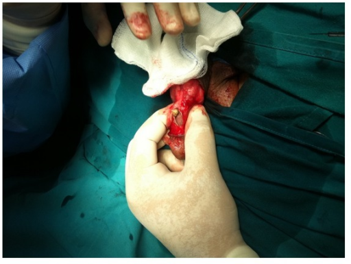 Retrieval of the stones from inside the cyst.