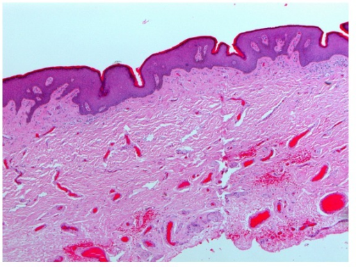 Histopathological picture confirms the diagnosis of penile epidermal inclusion cyst.