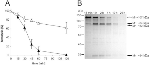 A. Haemolytic activity of EHEC-Hly is cut off by EspPα cleavage. EHEC-Hly-containing sterile culture supernatant from strain TA48 was incubated for indicated time intervals (0–120 min) with EspPα (▴) or EspPα-buffer control (▵) at 37°C and residual haemolytic activity was determined and calculated as percentage of haemolysis as described in Experimental procedures. Data are presented as means ± standard deviations of three independent assays. B. EHEC-Hly associated with OMV is cleaved by EspPα. Immunoblot analysis of OMV-associated EHEC-Hly incubated with EspPα for 15 min to 26 h using anti-EHEC-Hly antibody. The white arrow indicates the 107 kDa band of intact EHEC-Hly, and the black arrows mark the Mr ∼84 kDa, the ∼82 kDa and the ∼34 kDa EHEC-Hly cleavage products. Incubation times of OMV-associated EHEC-Hly with EspPα are given at the top of the figure.