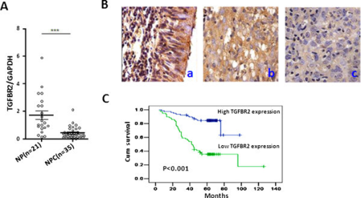 TGFβR2 down-regulation is associated with NPC aggressiveness. (A) TGFβR2 mRNA expression was detected by qRT-PCR in 21 NP tissues and 35 NPC tissues. Values represent mean ± SD, ***P < 0.001. (B) Representative TGFβR2 IHC images (400×). a. Normal nasopharynx epithelium, b. NPC with high TGFβR2 expression, c. NPC with low TGFβR2 expression. (C) Kaplan-Meier survival analysis in NPC patients according to TGFβR2 protein expression levels. The log-rank test was used to calculate p values (p < 0.001).