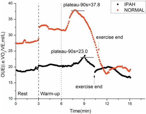 Difference of OUEP and OUE between a typical IPAH patient and a control subject.The kinetics of changes in oxygen uptake efficiency (OUE) for the same tests and subjects as depicted in Figure 1. OUE typically increase during exercise from rest to plateau in normal subjects and then decrease gradually until exercise end. It then decreases further in the immediate recovery period and begin stabilizing after about 2 minutes. In IPAH patients, OUE changes in a similar way as the controls, but is always lower than the controls in the transition from rest to exercise end.