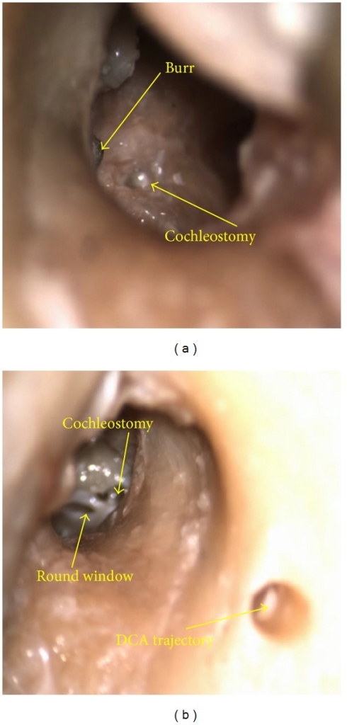 Microscope views through the external auditory canal of cochleostomy (a) and extended round window (b) completed through drilled DCA trajectories (visible in the right image); the burr is visible in the left image.
