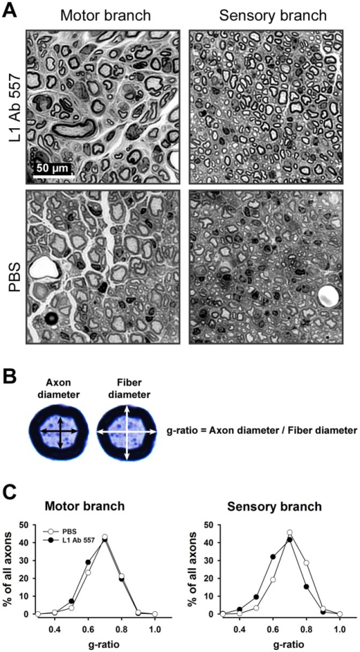 Analysis of myelination in regenerated femoral nerves in mice treated with L1 Ab 557 or PBS in the conduits applied to the transected nerves.(A) Representative images of the motor and sensory nerve branches from L1 Ab 557 or PBS treated mice. (B) Mean orthogonal diameters of the axon (black arrows) and of the nerve fiber (white arrows) were measured and the degree of myelination was estimated by the ratio of axon to fiber diameter (g-ratio). (C) Normalized frequency distributions of g-ratios in regenerated motor and sensory nerve branches. Regenerated nerves were studied 12 weeks after injury. Ten mice per group were analyzed. The shift in distributions of g-ratios to the left in the group treated with L1 Ab 557 in the sensory nerve shows better myelination compared to the group of animals treated with PBS (p<0.05, Kolmogorov-Smirnov test).