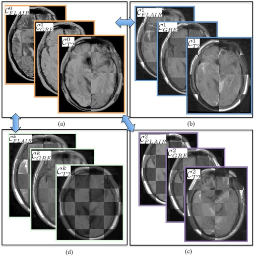 Checker-box representation of co-registration across different MR sequences at different time-points with respect to pre-LITT T1w MRI for (a) different pre-LITT MRI acquisitions, (b) 24-hour post-LITT MRI acquisitions, (c) 1-month post-LITT MRI acquisitions, and (d) 3-month post-LITT MRI acquisitions.Note the perfect alignment of the boundaries across different protocols and time-points. Pair-wise co-registration with respect to one reference MR sequence (T1w MRI) allows for quantitative comparison of different protocols at different time-points.