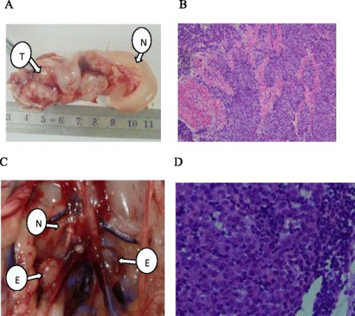Macroscopic and pathological analysis of rabbit endometrium and RLNs. (A) EC at day 21. N, normal uterine body; T, endometrial tumor. (B) Histological examination of the endometrium at day 21 revealed orthotopic EC (H&E, 200×). (C) Retroperitoneal lymph node metastasis at day 21. E, enlarged RLN; N, normal RLN size. (D) Histological examination of RLN at day 21 revealed the presence of tumor cells (H&E, 400×).