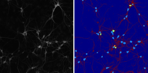 2D soma detection on large field-of-view image.Left: Tiled and stitched confocal fluorescent image (MIP view) of a neuronal culture. Image size = 1894 × 1894 pixels (1 pixel = 0.28 × 0.28μm). (B) Segmented binary image. Right: Soma detection and separation of contiguous somas. Segmented neurites are shown in red color. Detected somas are shown in light blue; in case of contiguous somas, the separated somas appear in green and orange colors.
