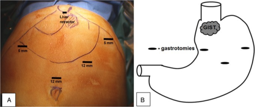 (A) Instrument access points and (B) gastrotomy positions on the anterior stomach wall and GIST location close to the OGJ.
