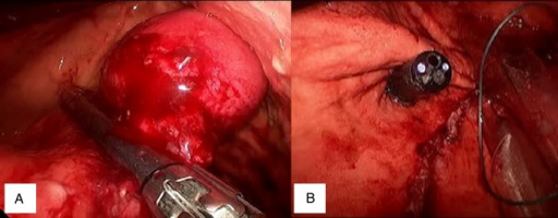 (A) Tumour elevation and stapler placement. (B) Staple line proximity to OGJ.