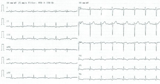12-lead electrocardiogram obtained on day five of the index admission. Abnormal Q-waves are seen in the left sided leads I, aVL, and V4–V6. The QTc interval was normal at 395 msec (Fredericia correction).