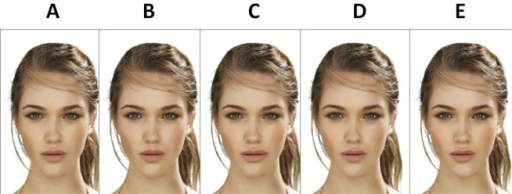 Second set of enhanced images: Modifications from facial symmetry: A. Deviation of the nasal pyramid, B. Deviation of filtrum, C. Deviation of labial angle, D. Image of reference, E. Deviation of menton.