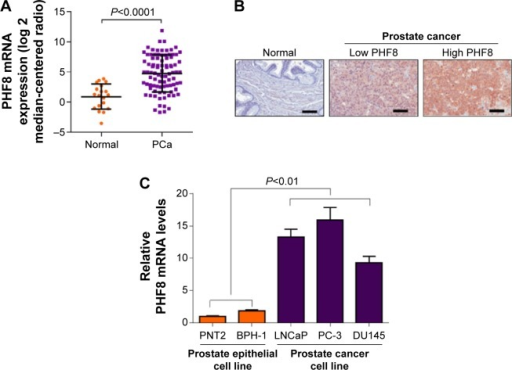 PHF8 is upregulated in human PCa and cell lines.Notes: (A) PHF8 mRNA level is upregulated in human PCa. The mRNA level of PHF8 in adjacent normal tissues and cancer tissues from PCa patients was analyzed with q-PCR. N=19 in normal group; n=89 in PCa group. (B) Representative IHC results showing PHF8 protein level is upregulated in human PCa. Adjacent normal prostate tissues and PCa tissues were subjected to IHC analyses with anti-PHF8 antibody. Both low PHF8 expression and high PHF8 expression are shown. Scale is 50 μm. (C) PHF8 mRNA level is high in PCa cell lines. The mRNA level of PHF8 in normal prostate epithelial cells (PNT2 and BPH-1) and PCa cells (LNCaP, PC-3, and DU145) was analyzed with q-PCR.Abbreviations: PHF8, plant homeodomain finger protein 8; PCa, prostate cancer; IHC, immunohistochemical.