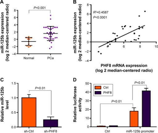 PHF8 regulates the expression of oncomiR miR-125b.Notes: (A) miR-125b is overexpressed in human PCa tissues. The level of miR-125b in adjacent normal tissues and cancer tissues from PCa patients was analyzed with q-PCR. N=10 in normal group; n=35 in PCa group. (B) miR-125b expression level is correlated with PHF8 expression level. Linear regression analysis was performed to analyze the correlation between miR-125b level and PHF8 mRNA level. N=35. (C) PHF8 knockdown reduces miR-125b expression level. (D) PHF8 promotes miR-125b promoter activity. A pcDNA4.0 vector was used as the control of PHF8 expressing vector, and a pGL3-Basic vector without miR-125b promoter was used as a control luciferase vector.Abbreviations: Ctrl, control; PHF8, plant homeodomain finger protein 8; PCa, prostate cancer.