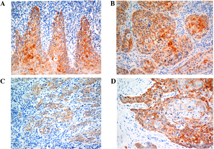 Protein expression of Beclin-1 by immunohistochemistry (magnification, ×200). (A) Beclin-1 expression in the normal tongue epithelium. (B) Intermediate expression of Beclin-1 in OTSCC tissue. (C) Low expression of Beclin-1 in OTSCC tissue. (D) High expression of Beclin-1 in OTSCC tissue. OTSCC, oral tongue squamous cell carcinoma.