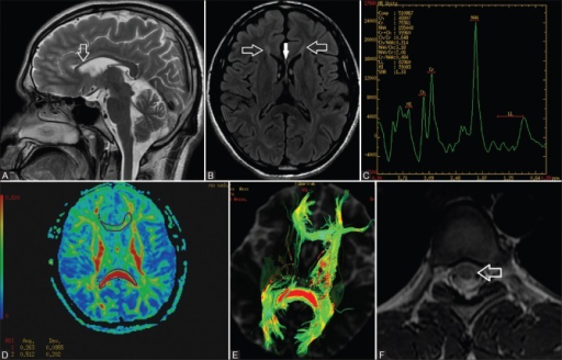 (A) MRI brain sagittal T2-weighted image showing thin anterior corpus callosum (white arrow) with mild atrophy. (B) MRI brainaxial T2 FLAIR showing periventricular frontal (ears of lynx appearance) white matter hyperintensity (white open arrow) and thin genu of corpus callosum (white solid arrow). (C) MRS brain showing no abnormal metabolite peaks. (D) DTI showing significantly reduced fractional anisotropy in anterior part of corpus callosum. (E) DTI showing decreased oriental coherence of fiber tracts. (F) MRI dorsal spine axial T2 Weighted image showing spinal cord atrophy and hyperintensity in left posterolateral aspect of the cord (open white arrow)