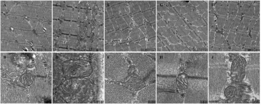 Mitochondrial structure of mice skeletal muscle under electron microscopy. (A,B) control, (C,D) model, (E,F) SPP-200 mg/kg, (G,H) SPP-400 mg/kg, (I,J) CoQ 10 200 mg/kg at 4.0 K (upper) and 20.0 K (lower) magnification. Scale bar represent 2 um and 200 nm respectively.