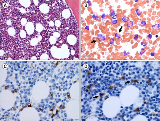 Morphologic and immunophenotypic features of the bone marrow biopsy and aspirate. (A) Bone marrow core biopsy shows hypercellular bone marrow with trilineage hematopoiesis and markedly increased eosinophils (H&E, ×200). (B) Bone marrow aspirate smear shows increased eosinophils, black arrows (Wright-Giemsa, ×500). (C) Immunohistochemical stain for CD5 shows a few scattered T cells (CD5, ×500). (D) Immunohistochemical stain for CD117 shows slightly increased atypical spindle-shaped mast cells (black arrows) with interstitial distribution (500) representing subdiagnostic mastocytosis.