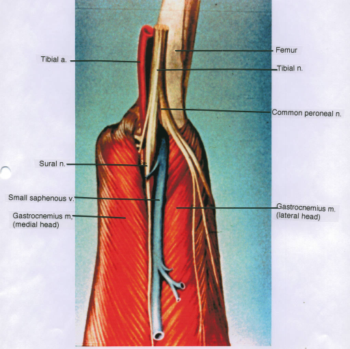 tibial artery; sural nerve; small saphenous vein; gastrocnemius muscle; femur; tibial nerve; common fibular (peroneal) nerve