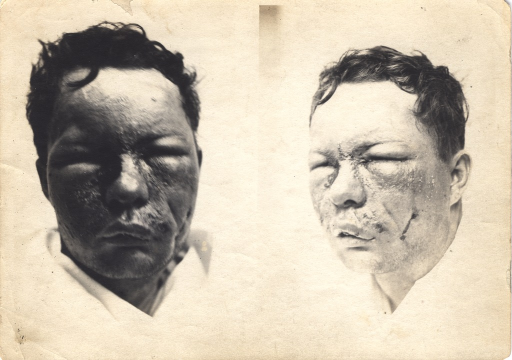 <p>Black and white photograph of injured soldier with massive facial wounds posing at two different angles. The soldier's eyes are swollen shut.</p>