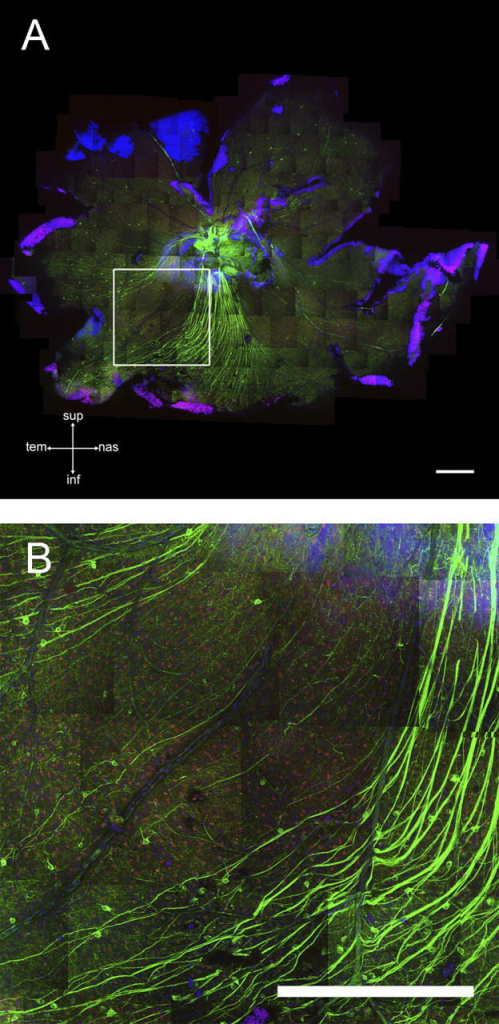 Sectors of fairly normal ganglion cells can persist even in severe retinas. (A) Survey of a whole-mounted retina stained with anti-SMI32 (green), Chat (red), and TOPRO (blue). The outlined square indicates the location of the field in B. (B) Higher magnification view. A sharp boundary between an axon- and cell-rich area (bottom) and a depleted area (left) is obvious. The optic nerve grade was severe for this eye. Bars, 500 μm.