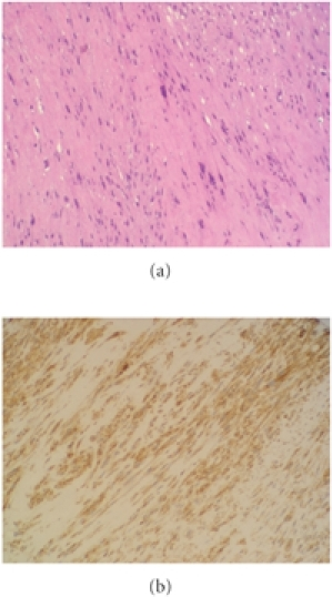(a) HE staining: fascicles of elongated spindle-shaped cells. (b) Immunohistochemical staining: presence of smooth muscle actin in the cytoplasm.
