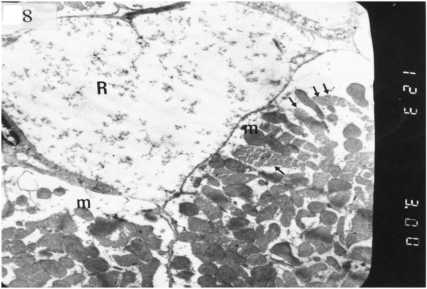Electron micrograph of an ultrathin section in the ventricular muscle of group II (diabetic rats) showing one rarefied cardiac myocyte (R) with marked myofibrillar lysis. Another myocyte shows rarefied myofibrils (arrows) and mitochondria with dense matrix (m) (Original mag. X 3000).