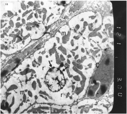 ). Electron micrograph of an ultrathin section in the ventricular muscle of group III (diabetic rats receiving insulin) showing margination of nuclear chromatin of a cardiac myocyte (arrows). Myofibrils are rarefied (r). Mitochondria (m) are irregularly dis-persed (Original mag. X 3000).