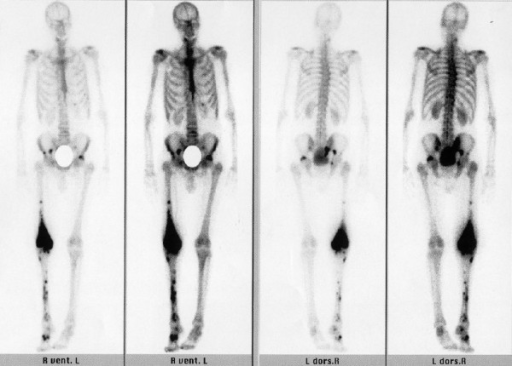 Abnormal Bone Scan