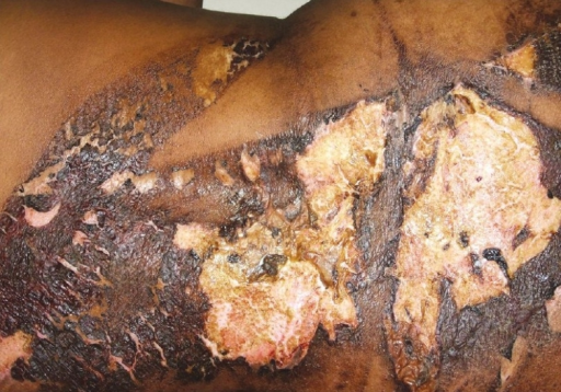 Macerated skin on the back as a result of exposure to povidone iodine