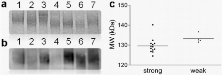DC-SIGN binding is highly variable and correlates with BSSL protein size.(a) Example of a coomassie stained SDS-PAGE separation of breast milk from 7 mothers showing the bile salt-stimulated lipase (BSSL) of variable sizes. (b) Western blot stained with DC-SIGN-Fc of the same 7 milks as depicted in figure a. (c) Breast milks with smaller BSSL protein have stronger DC-SIGN binding capacity than breast milks with larger BSSL protein. Molecular weights (MW) of BSSL protein was compared in milks with strong DC-SIGN binding capacity versus milks with weak DC-SIGN binding capacity. Median protein sizes in the weak and in the strong DC-SIGN binding groups are indicated by a horizontal line.