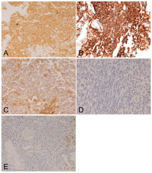 Immunohistochemical features. The tumor cells are positive for CD5 (A), CD20 (B), and κ-chain (C). λ-chain was negative (D). A, B, C: ×200. D, x400. The tumor cells were negative for CD3 (E). A small amount of CD3-positive inflammatory cells are seen (E). E: ×200.
