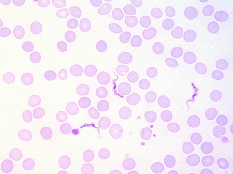 Trypomastigotes in a Giemsa-stained thin blood film of patient 2 (original magnification ×1,000).