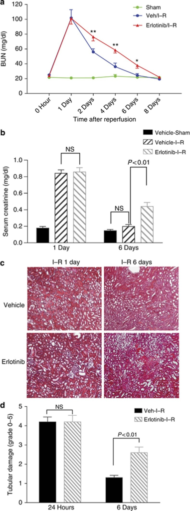 Erlotinib administration delayed renal structural and functional recovery from ischemia–reperfusion (I–R) injury. Balb/c mice were administered vehicle or erlotinib daily beginning 1 day before surgery, and blood urea nitrogen (BUN; a) and serum creatinine (b) were measured at different time points after I–R injury as indicated. Histology (original magnification × 200) is indicated for days 1 and 6 after I–R injury (c), and tubular damages were scored as indicated in Materials and Methods (d). Values are means±s.e.m. (n=6–8 for each group). **P<0.001, *P<0.05. NS, nonsignificant.