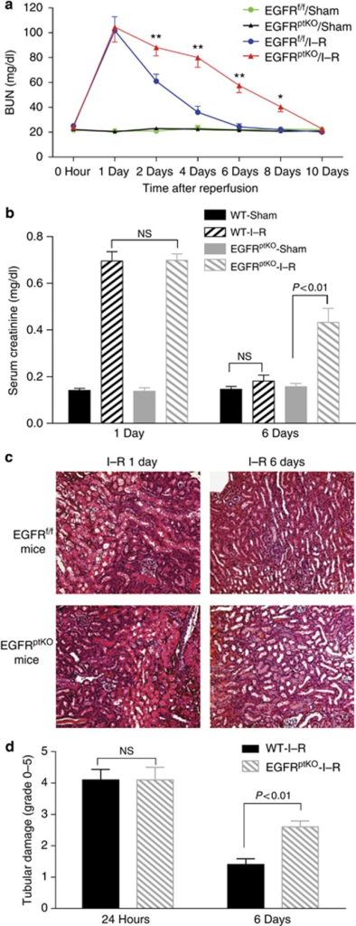 Selective deletion of epidermal growth factor receptor (EGFR) in renal proximal tubules delayed renal structural and functional recovery from ischemia–reperfusion (I–R) injury. Following I–R injury to EGFRptKO or EGFRf/f mouse, blood urea nitrogen (BUN; a) and serum creatinine (b) were measured, and histology (original magnification, × 200) at day 1 and day 6 after I–R injury are presented (c), and tubular damages were scored as indicated in Materials and Methods (d). Values are means±s.e.m. (n=6–8 for each group). **P<0.001, *P<0.05. NS, nonsignificant; WT, wild-type mice.