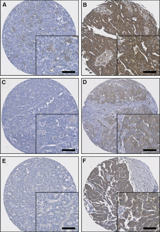 Representative photomicrographs of protein expression levels. (A) low calpastatin expression (H-score 60); (B) high calpastatin expression (H-score 280); (C) low calpain-1 expression (H-score 10); (D) high calpain-1 expression (H-score 200); (E) low calpain-2 expression (H-score 20); (F) high calpain-2 expression (H-score 165). Photomicrographs are at 10× magnification with 20× magnification inset box where scale bar shows 50 μm