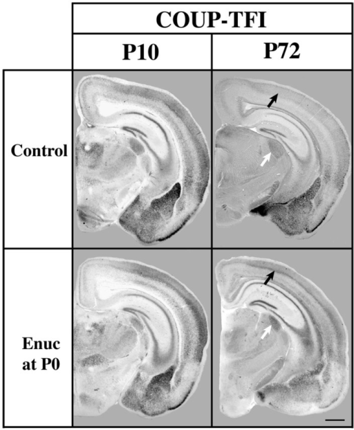 Analysis of COUP-TFI gene expression in P10 and P72 control mice and mice bilaterally enucleated at birth. One hundred micrometers coronal sections of P10 and P72 brain hemispheres following in situ hybridization with a probe against COUP-TFI. At P10 strong COUP-TFI expression is seen in layer 4 of the caudo/lateral cortex in both control and enucleated animals. Layer 4 COUP-TFI expression at P72 is maintained in the enucleated animal, but is notably reduced in control animals (black arrows).Additionally, expression of COUP-TFI, although present in a smaller domain due to the decreased sized of the nucleus after enucleation, shows increased expression in the LGN of mice enucleated at birth as compared to controls at P72 (white arrows). Normal developmental time limits of COUP-TFI expression in mouse brain are extended by removal of visual activity, perhaps representing an extension of the critical for plasticity. Oriented dorsal up and lateral to the right. (Data from a published abstract, Society for Neuroscience conference, Huffman et al., 2010).