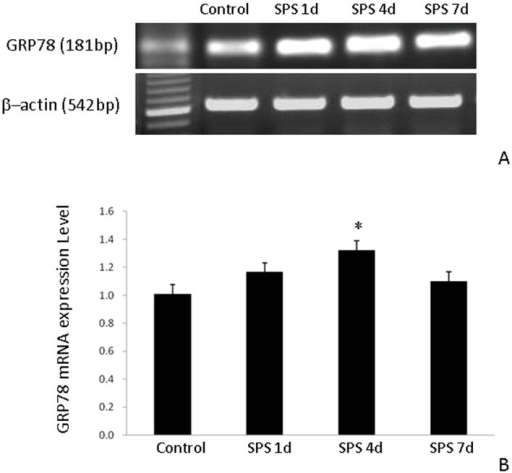 RT-PCR of GRP78 in the hippocampus of the SPS rats.GRP78 mRNA expression (A) and results from its quantitative analysis (B). GRP78 mRNA expression in the hippocampus of rats subjected to SPS was higher than that in the hippocampus of control rats. *P<0.05 vs. the control group.