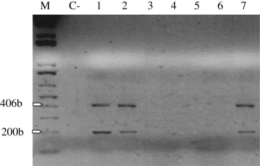 Transcriptional expression of LMP-1. A 406-bp PCR amplified fragment corresponding to the LMP-1 DNA sequence, and a 200-bp RT-PCR amplified fragment corresponding to the LMP-1 mRNA sequence. Lanes 1, 2 and 7 are positive signals. M: DNA fragments molecular markers. C-: negative control.