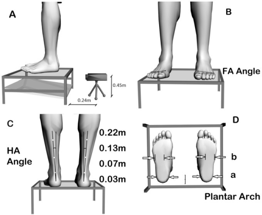 Photogrammetric analysis (A) of the forefoot angle (B), the rear foot angle (C) and the plantar arch (D).